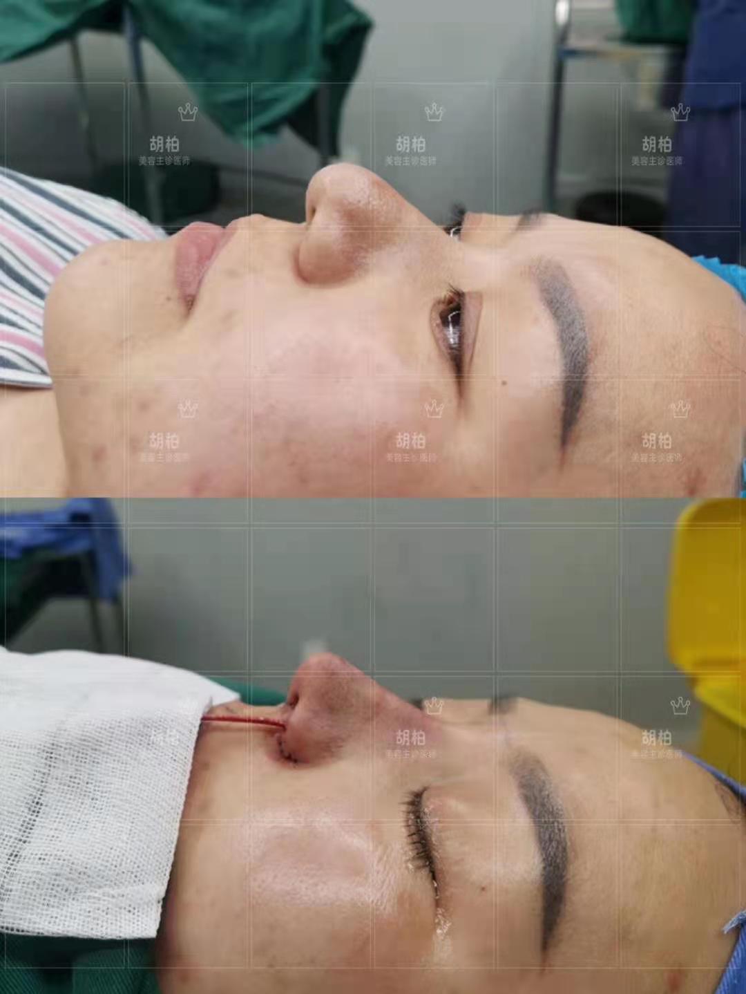 肋骨鼻专家胡柏