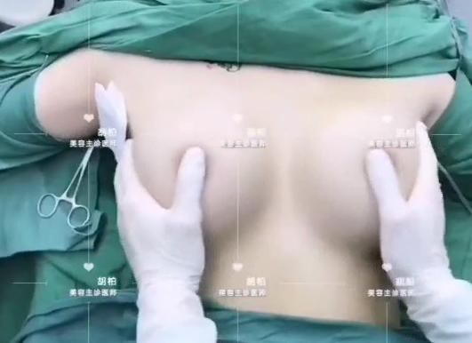 鼻子整形手术前应该注意哪些