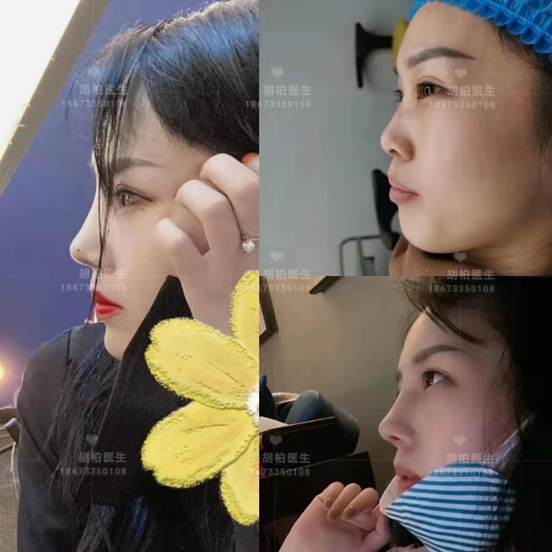 胡柏鼻修复专家解析鼻部修复手术常见的问题