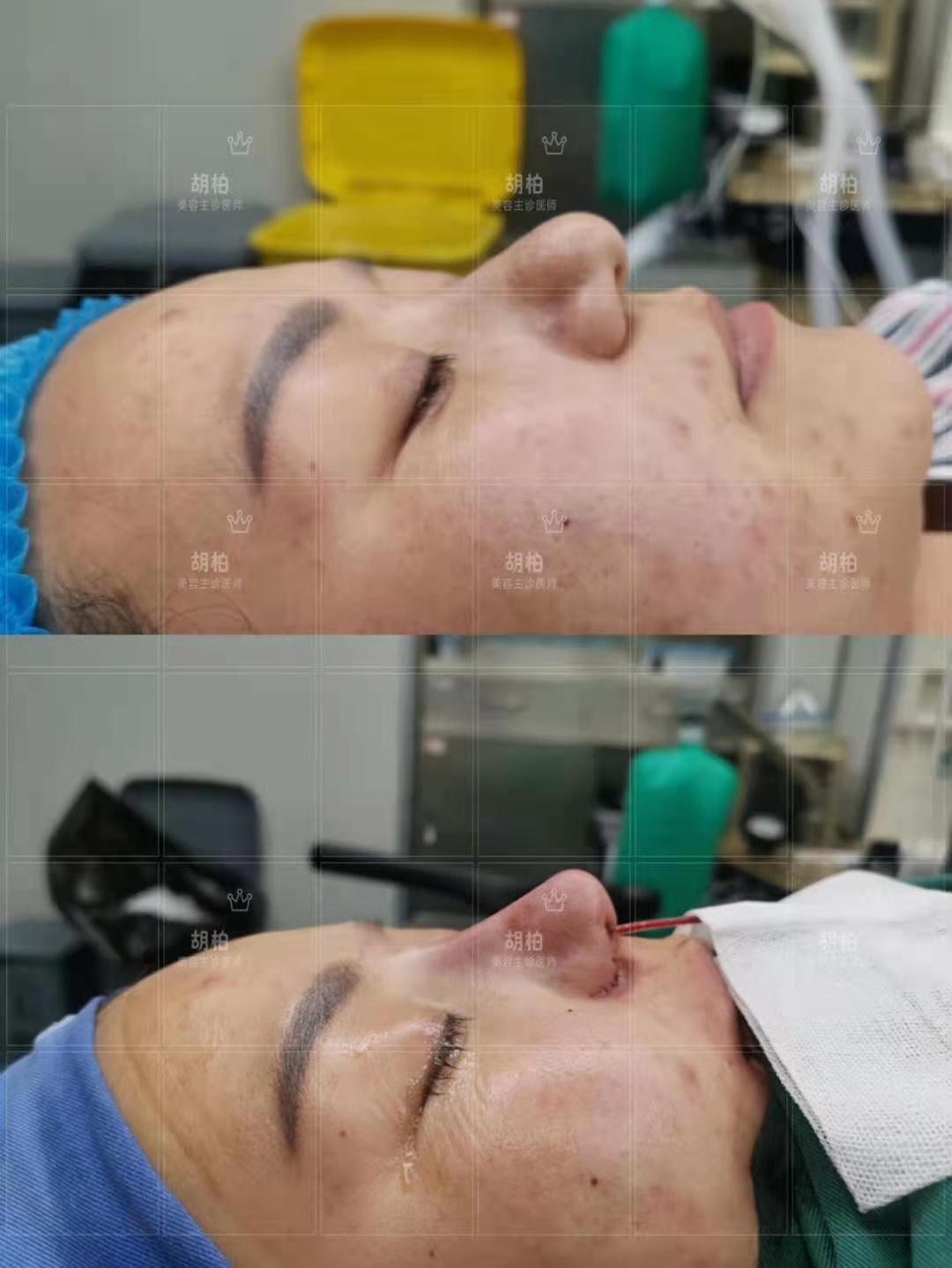 肋骨鼻专家胡柏口碑