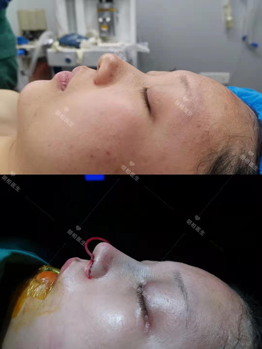 超体隆鼻胡柏