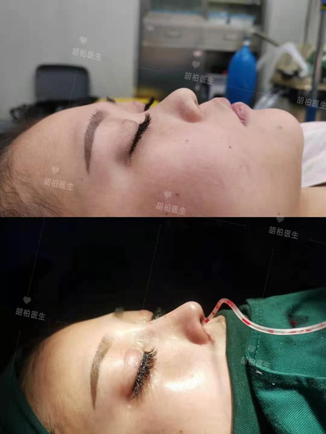 超体隆鼻胡柏怎么收费