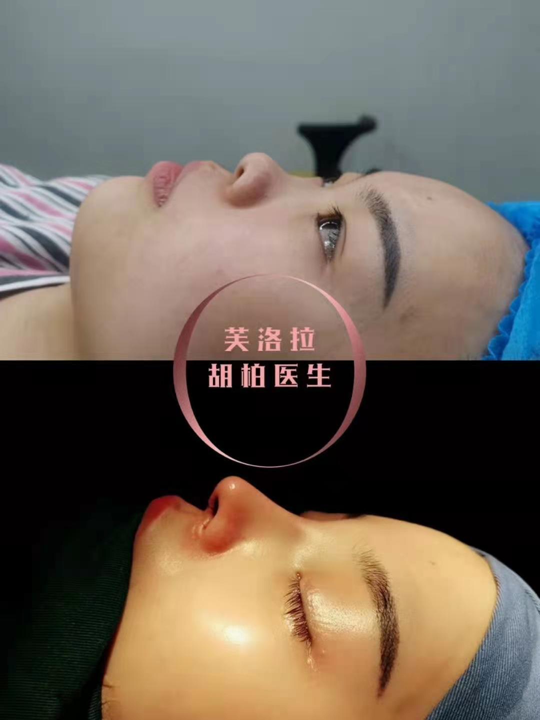什么情况下需要做鼻修复